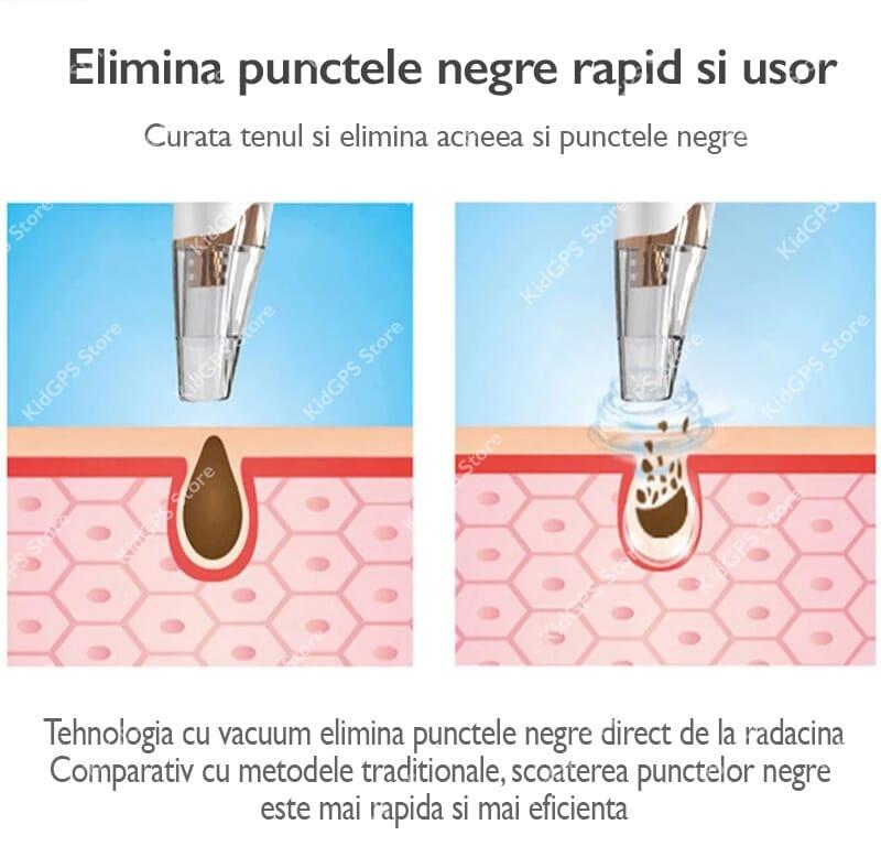 blackhead remover pore vacuum
